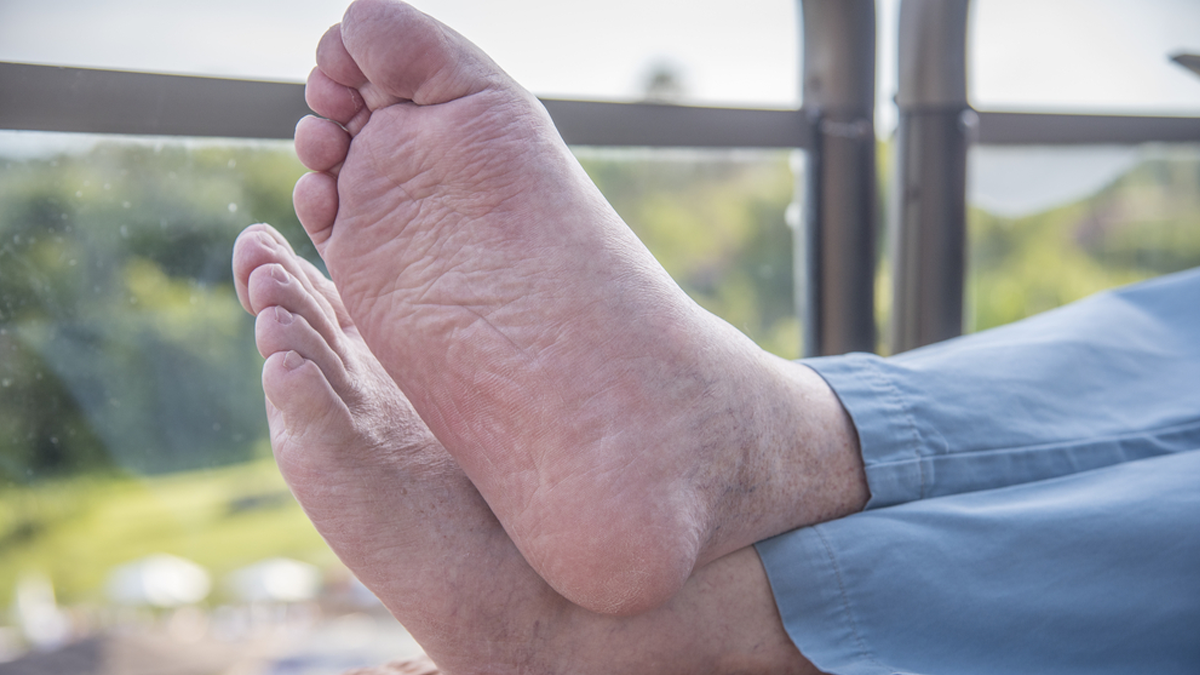 Top Tips for Diabetes Foot Care